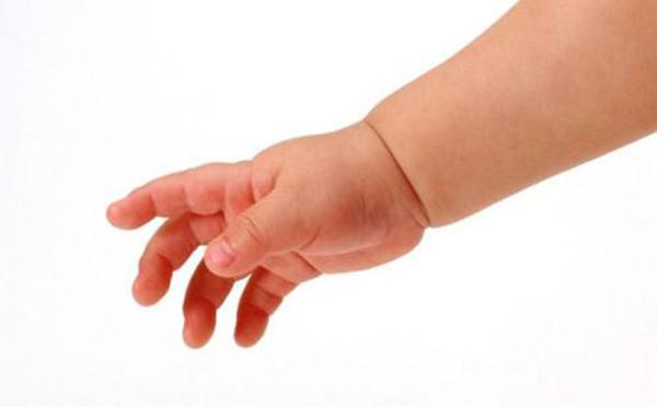 专家向您解答 多指畸形吃什么好