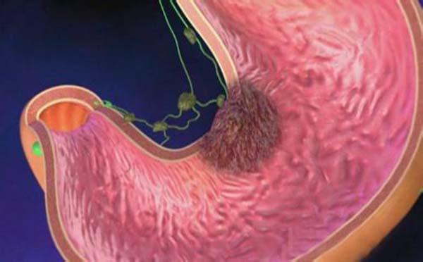 哪些因素会引起胃炎的发生呢——专家提醒您