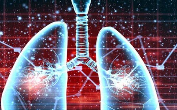 专家为您解答肺纤维化的发病因素有什么呢