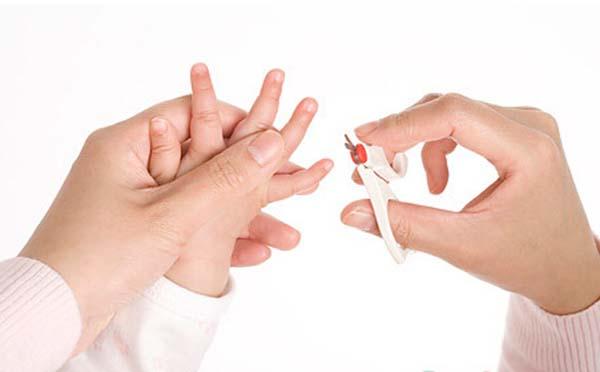专家告诉你宝宝出水痘如何护理