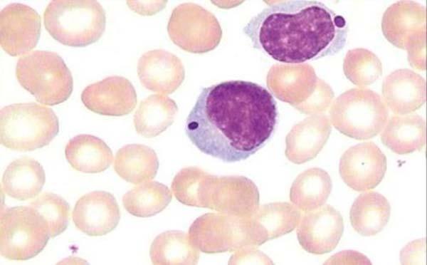 专家为您介绍儿童白血病的病因