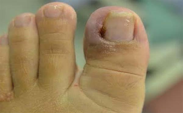 传染性软疣对人体的危害有哪些 听专家怎么说