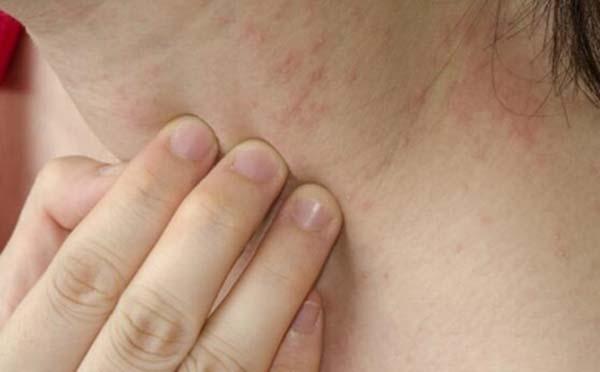 专家告诉您 皮肤过敏什么原因导致的