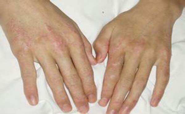 专家为您解答白塞氏病的症状都有哪些