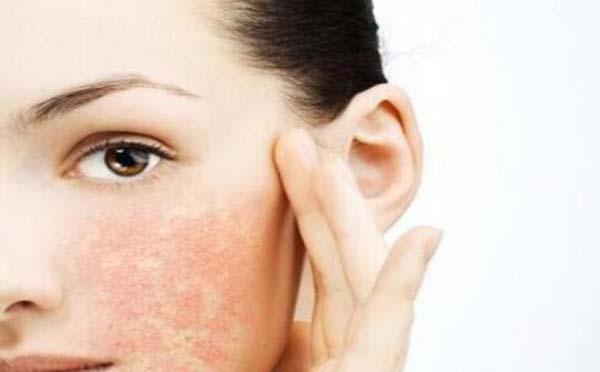 专家向您解答化妆品引起的皮肤过敏症状有哪些