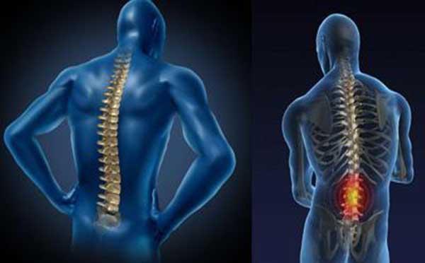 强直性脊柱炎的发病原因有哪些 专家向您解答