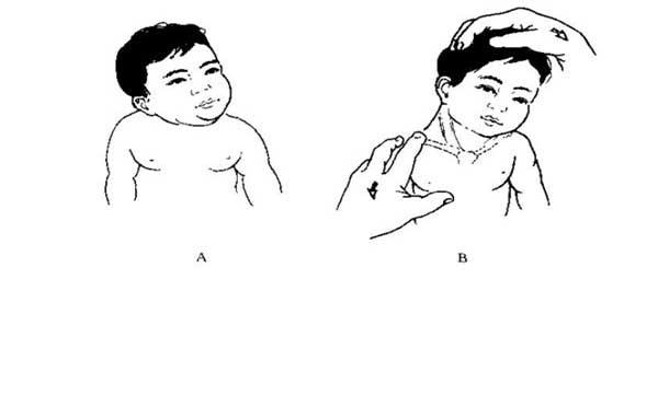 为什么会出现先天性肌性斜颈 专家向您解答