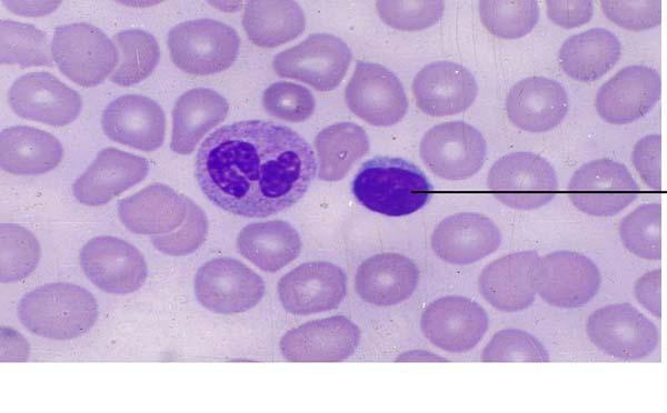 专家为您解答淋巴瘤危害具体有哪些