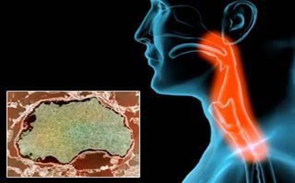 专家为您详细介绍引起咽喉癌的原因有哪些