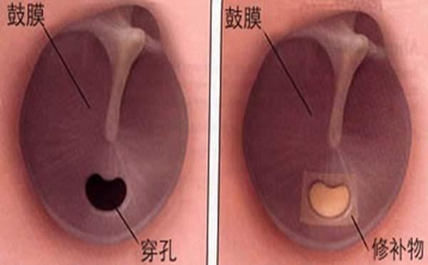 专家为您介绍各种不同原因可引起鼓膜穿孔