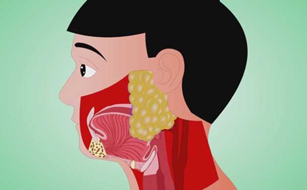 专家告诉您口腔颌面部肿瘤禁忌的是什么