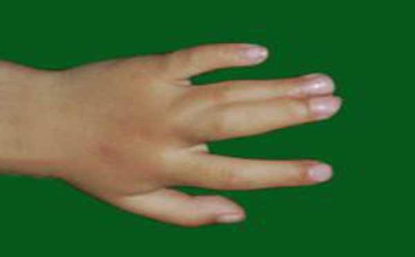 专家向您解答先天性并指多指畸形的原因及类型