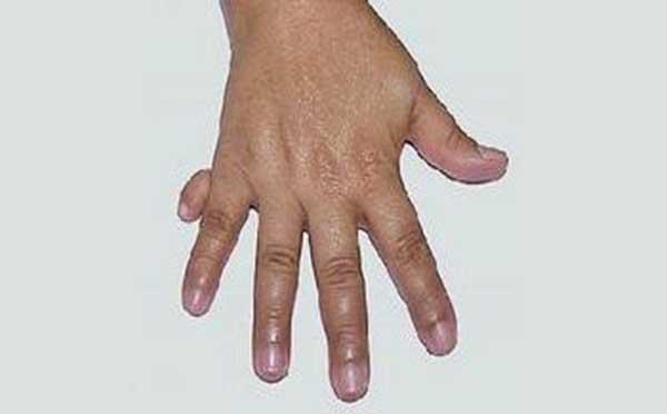 从专家的角度看先天性并指多指畸形引发什么疾病