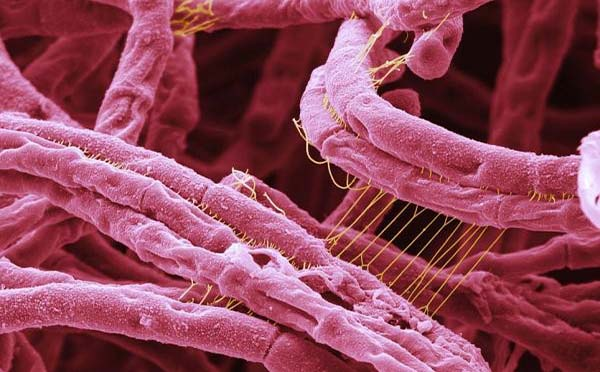 炭疽病是日本人留下的吗