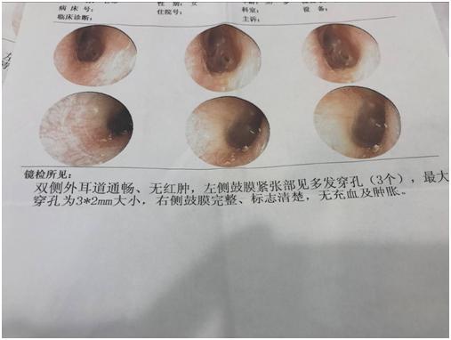 外伤性鼓膜穿孔能长好吗穿孔后三天