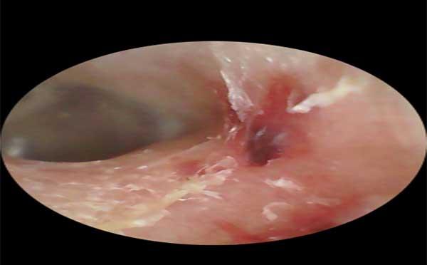 耳朵外伤怎么处置